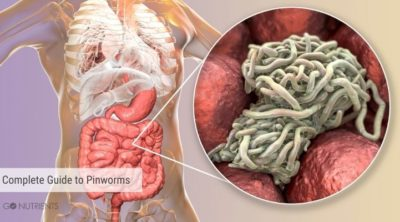 Complete guide to pinworms